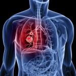 tratament-pentru-cancer-anticancer-